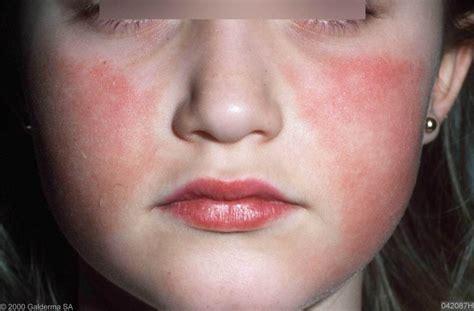 vlekkerige huid gezicht