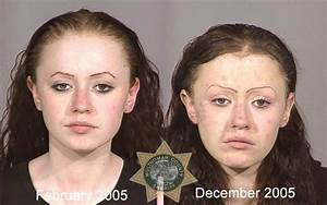 crystal meth faces before and after MEMEs