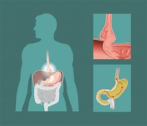 Hiatal Hernia  Causes And Natural Remedies To Treat It