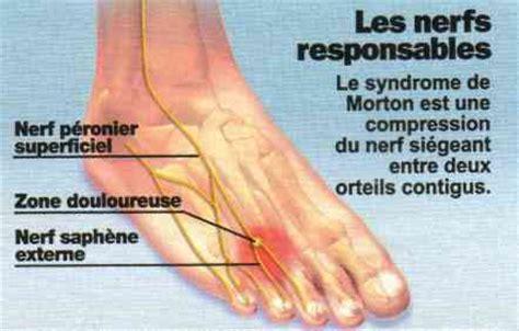 douleur exterieur du pied droit pr 233 paration termin 233 e