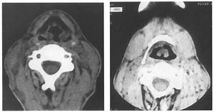 Ct Scans Of The Larynx Showing  A  Thickening Of