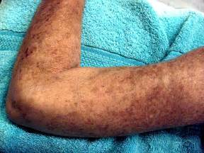 Scleroderma. Causes, symptoms, treatment Scleroderma  Scleroderma Connective Tissue Disorders