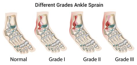 sprained ankle types