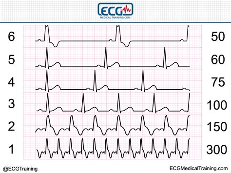 Large Block Method to Calculate Heart Rate - ECG Medical