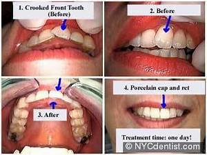 Crowns or caps for crowded crooked teeth - NYC Dentist