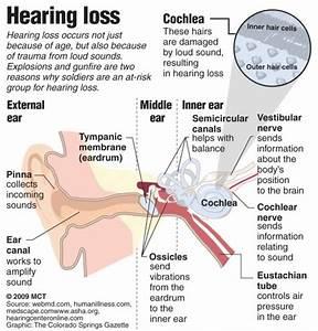 Hearing Loss  U0026 Deafness  U2013 Schoolworkhelper