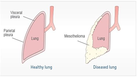 pleural mesothelioma asbestosis symptoms  treatment