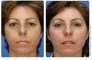 Caro Light Before And After Microdermoabrasion Artistry Artistry Time Defiance