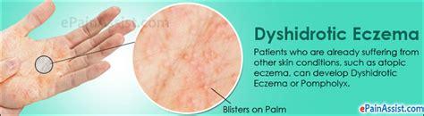 Dyshidrotic Eczema Home Remedies by Dyshidrotic Eczema Or Pompholyx Treatment Home Remedies