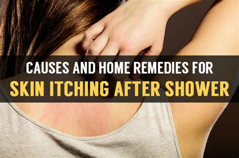 Legs Itchy After Shower - learn cause of skin itching after shower with home