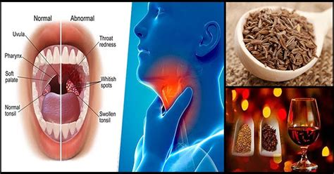 simple home remedy  sore throat  tonsillitis dr