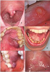 Other Oral Lesions That May Be Found In Hiv
