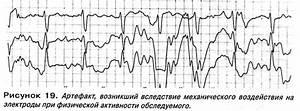 Органы мишени гипертонии