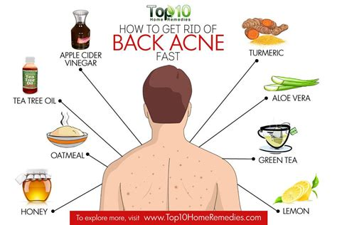 how to get rid of back acne top 10 home remedies