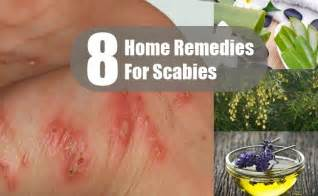 Home Remedy For Scabies