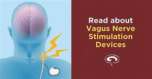 Vagus Nerve Stimulation For Migraine And Cluster Headache