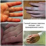 К кому обращаться при псориазе артрите