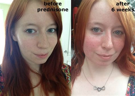 Exploring The Possible Role Prednisone Played In The