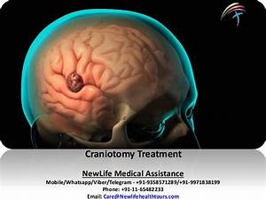 Craniotomy/Brain Tumor removal Surgery in India