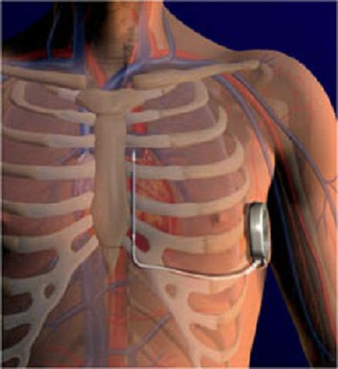 chambre implantable has external defibrillator offers safer way to jump