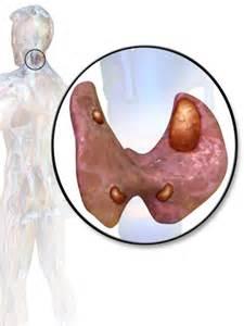 Parathyroid adenoma - Wikipedia, the free encyclopedia Hyperparathyroidism