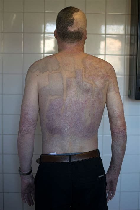 Photographer pictures of scars people received from near ...