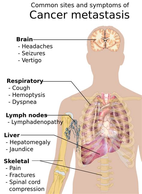 Cancer Signs And Symptoms Wikipedia