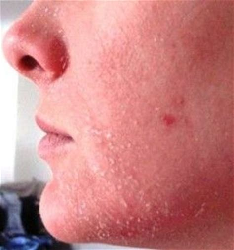 dry skin  face   cure remove red peeling