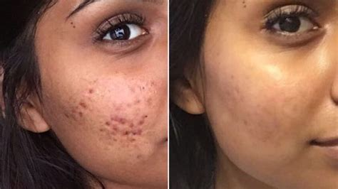 How to Get Rid of Your Cystic Acne Permanently - Her Style