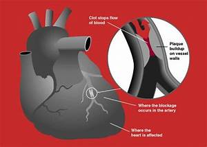 Heart Attack Diagram