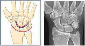Lunotriquetral Ligament Injury  U0026 Visi - Hand