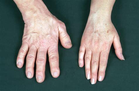 acromegaly outlook improves   diagnostics