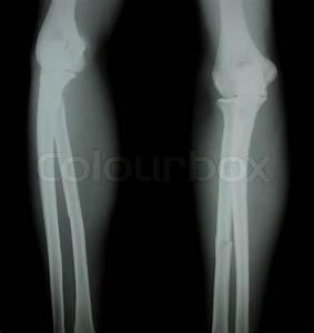 X-ray of both human legs broken legs   Stock Photo   Colourbox
