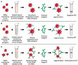 Types Of Antibodies Frontiers Blood Transfusion Management For Patients