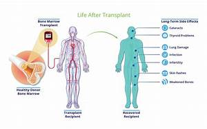 Bone Marrow Transplants: More Than Just Survival   PCORI