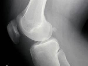 Beginner U0026 39 S Guide To Knee Pain