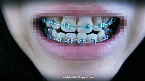 what color braces should i get quiz what color braces should i get quiz the 25 best braces