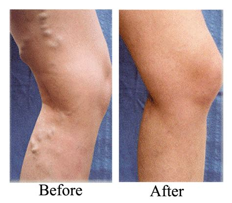Varicose Vein Treatment. Criminal Justice Phd Online Dr Sajjad Khan. Internet Providers Humble Tx. Top Rated Wireless Home Security Cameras. Can You Take A Loan From An Ira. Prescott Air Conditioning Repair Water Damage. Where Should I Open A Savings Account. Texas Laparoscopic Consultants. High Risk Bank Accounts Phase 1 Environmental