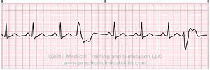 Premature Ventricular Contractions Trigeminy | www.imgkid ...