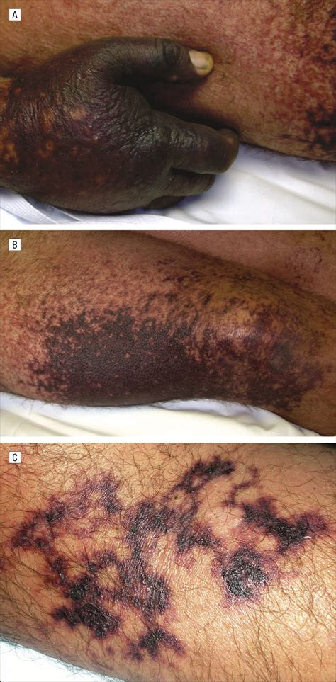phenylephrine induced microvascular occlusion syndrome