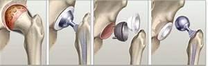 Артроз тазобедренного сустава 3 степени лечение в домашних условиях