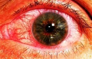 Крем под глаза от морщин и синих кругов