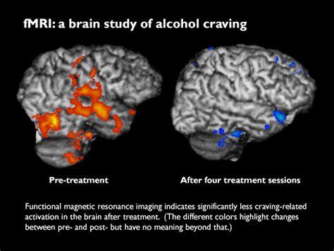 brain scans confirm  alcohol craving  treatment