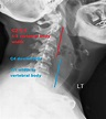 Retropharyngeal abscess causes, symptoms, diagnosis ...