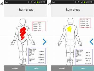 The Total Body Surface Area  Tbsa  Calculator That