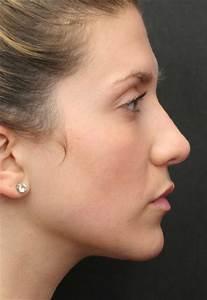 Remove a Depression in Your Profile (Saddle Deformity ...