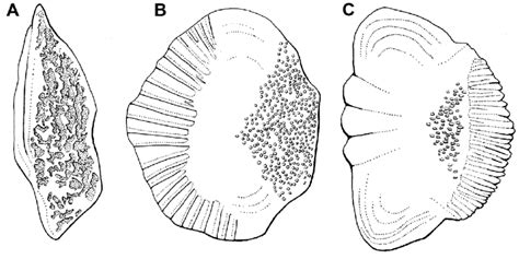 major kinds  bony fish scales shown
