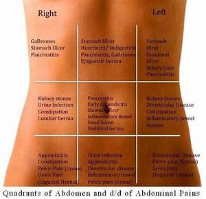 Abdominal Pain Differential Diagnosis Chart