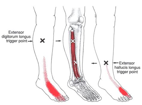50 Best Lower Leg Trigger Points Images On Pinterest