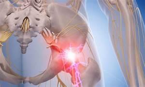 Sciatica Information And Sciatic Nerve Pain Treatments